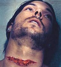 Ex-marido de Spears aparece com ferimento na garganta em ensaio (foto)