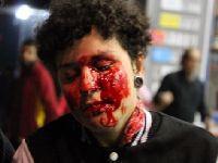 Estilo do PSDB de governar: Policia do Alckmin em São Paulo cega jovem em manifestação. 25041.jpeg