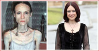 Adrenalina da anorexia leva à morte