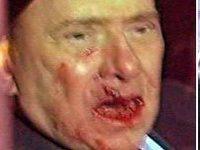 Ataque contra Berlusconi: Por quê é que as feridas mudaram de lado?