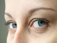 Poluição Provoca Doenças Oculares