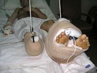 Cirurgião espanhol reimplanta a perna direita
