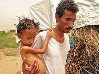 Iémen: má-nutrição infantil atinge nível mais elevado. 34273.jpeg