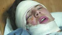 Jovem actor português ferido numa discoteca em Lisboa