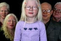 Albinos são mortos para feitiçaria
