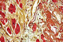 ICNAS testa novo método de avaliação do risco cardiovascular. 24302.jpeg