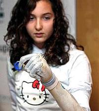 Mão biónico se torna acessível