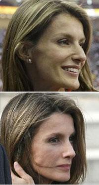 Princesa da Espanha submeteu-se a uma cirurgia plástica