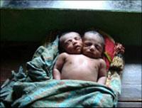 Recém nascido tem duas cabeças (foto)