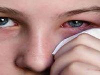 Covid-19 aumenta olho seco, diz estudo. 33439.jpeg