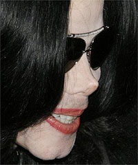 Michael Jackson tem um complexo das doenças mortais