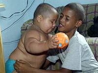 Bebê de 25 quilos  está examinado em Salvador