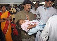 Menina indiana nascida com  anomalia se recupera