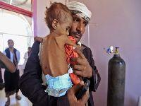 Dois terços dos iemenitas sem acesso a água potável. 34708.jpeg