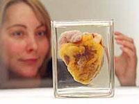 Jovem visitou a exposição para ver próprio coração