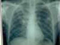Nanotecnologia pode revolucionar tratamento de tuberculose