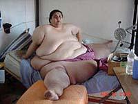 Homem mais gordo do mundo se submeterá a uma cirurgia