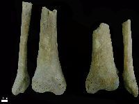 Primeiro caso no mundo: esqueletos medievais com amputações. 26821.jpeg