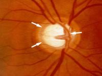 Novo Cosmético Pode Prejudicar a Visão