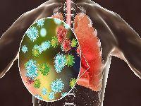 Coronavírus: Como enfrentar a pandemia?. 32857.jpeg