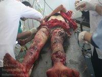 ONU: Bloqueio israelita de Gaza provoca crise humanitária