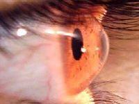 Outono piora doença na córnea. 30947.jpeg