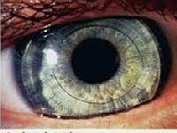 Pandemia diminui transplante de córnea no país. 33955.jpeg