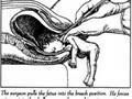 Portugal: Referendo sobre o aborto