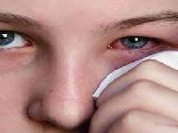 Lágrima transmite coronavírus