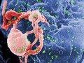 ONU: A meta é intensificar a luta contra o VIH