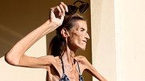 Valeria Levitin, uma modelo russa de 29 anos moradora de Mônaco pesa só 25,4 kg. Ela recebeu o título de mulher mais magra do mundo após anos de dieta extrema. Valéria acredita que sua mãe pode ter influenciado os seus hábitos alimentares. Aos 16, ela pesava pouco mais que 50 kg. Fotos Splash/All Over.