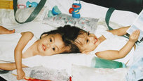 Clarence e Carl Aguirre nasceram unidos pela cabeça e, aos dois anos, foram operados no Hospital Montefiore, no Bronx, em Nova York, nos Estados Unidos. Comemoraram 10 anos de renascimento.Os dois ainda têm problemas de locomoção, mas aos poucos parecem conseguir vencê-los. Clarence e Carl também usam capacetes, já que têm o crânio bastante frágil. Fotos AP.